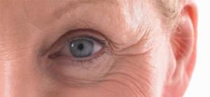 Карта морщин: о чем говорят морщины на лице